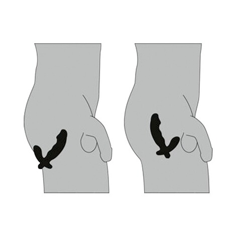 Prostata vibratoren